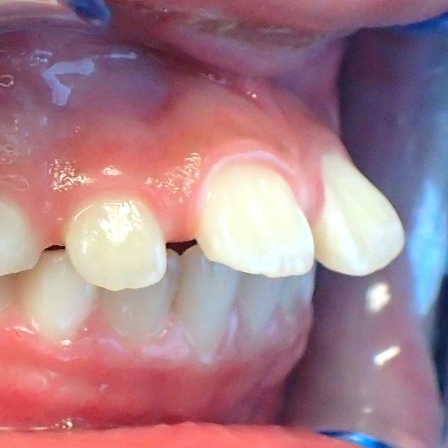 Teeth Side View Before Treatment.jpg