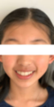 March 2020 Face Smile - Blurred white.jp