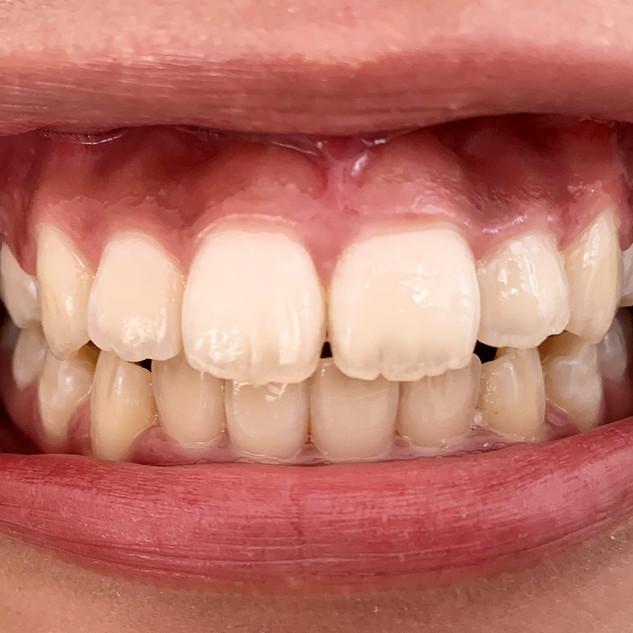 Teeth%20Front%20-%20Copy_edited.jpg