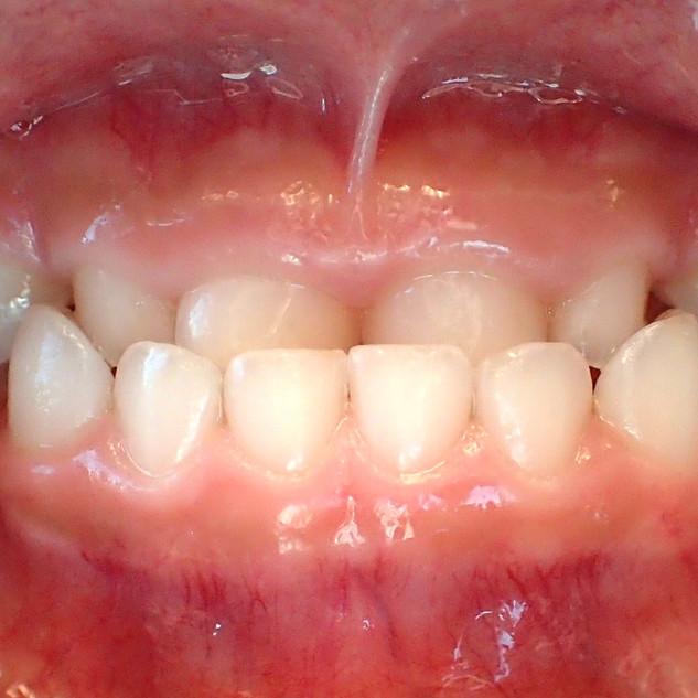 teeth%20front_edited.jpg