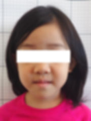 Face Blurred Pre-treatment.jpg