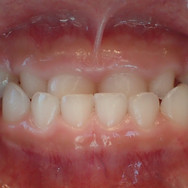 teeth front.jpg