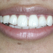 Smile and Teeth.JPG