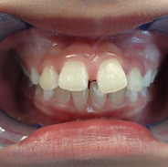 Teeth Front View Before Treatment.JPG
