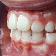 Teeth%2520Left_edited_edited.jpg