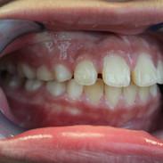 Teeth Side View Progress.JPG