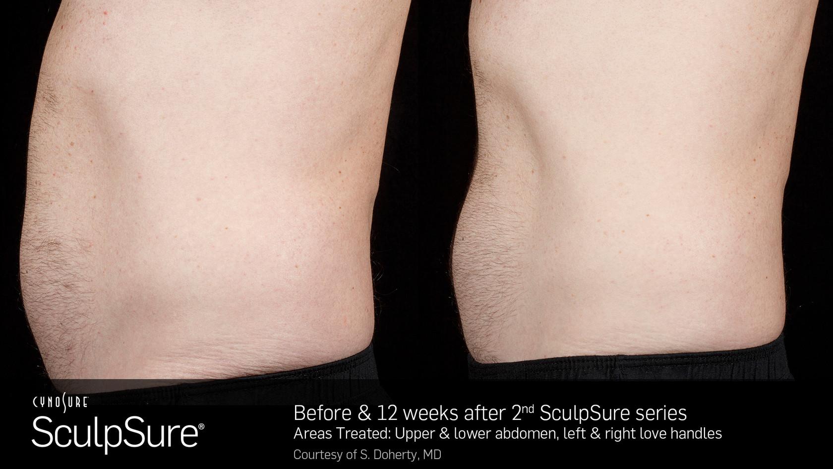 SculpSureBefore&After_SidebySide_Male9.2
