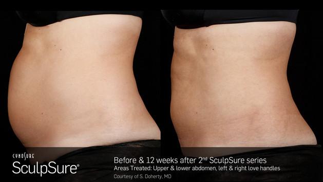 SculpSureBefore&After_SidebySide_Female1