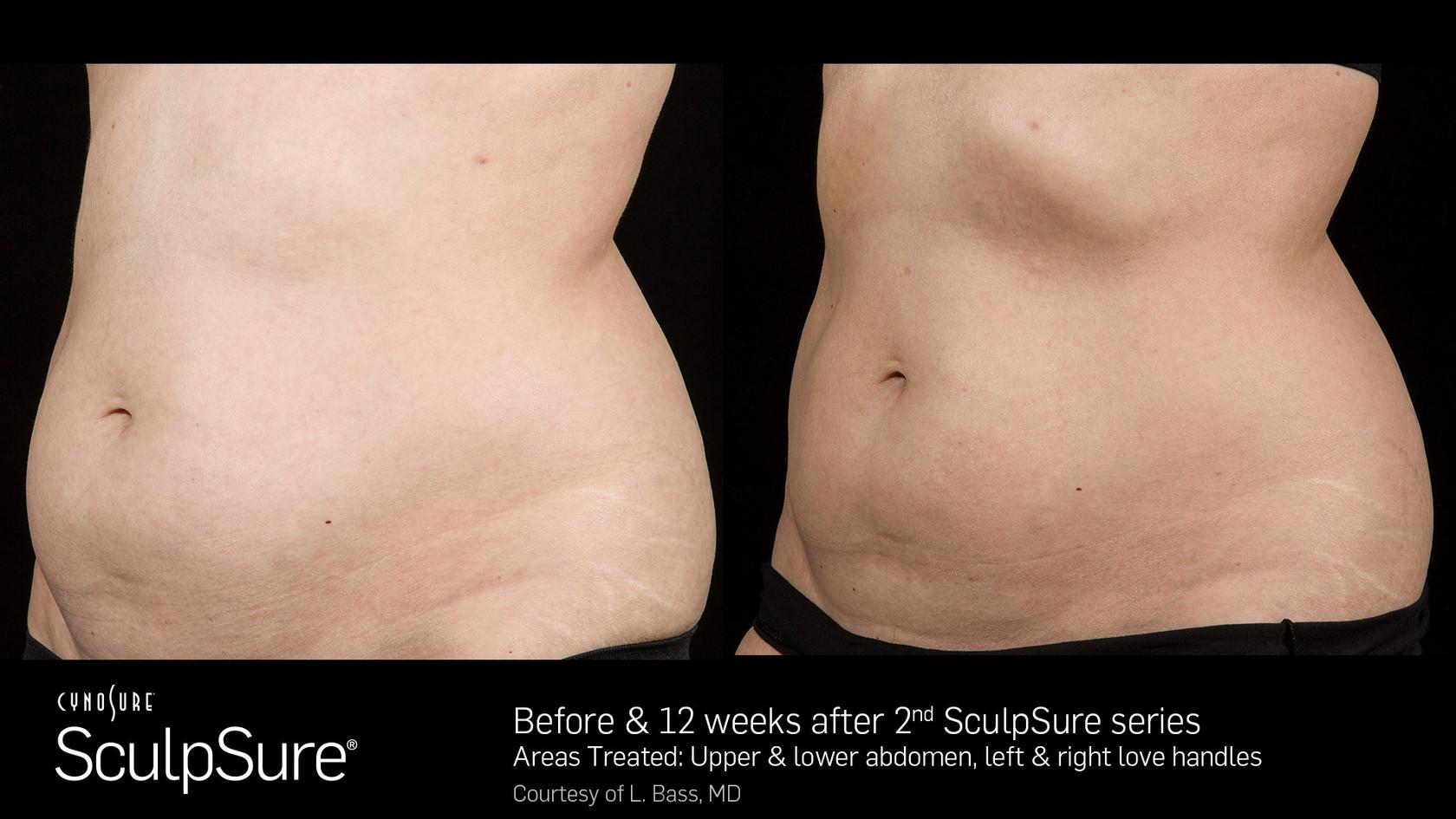 SculpSureBefore&After_SidebySide_Female6