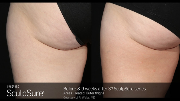 BA_SculpSure_R.Weiss_OuterThigh_3tx_9wee