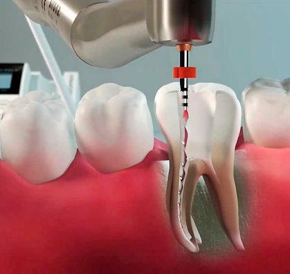 Endodontia.jpg