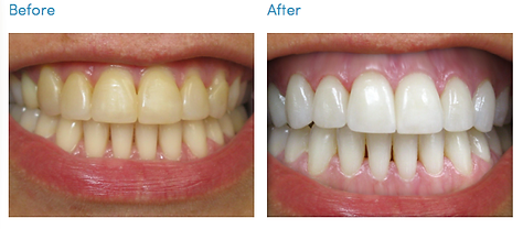Teeth-Whitening-kit-before-after.png