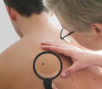 Skin Evaluation