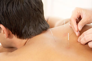 Dry Needling by Mels Massage is used to treat pain associated with a range of soft tissue dysfunctions. Acupuncture needles are inserted into a tender point in a tight muscle (myofascial trigger point) that causes pain when pressed or squeezed.