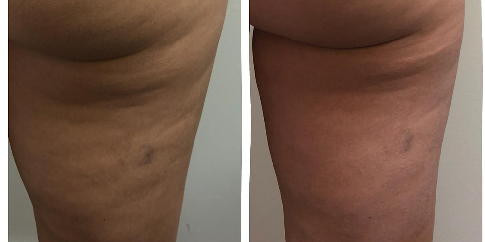Skin & Cellulite Workshop