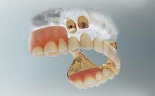 Crown overdenture greater london primrose hill dental