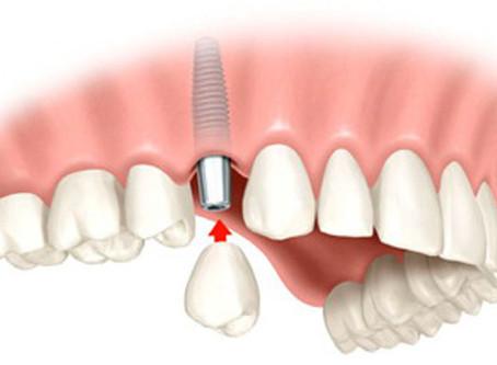 Dental Implant Placement In Regents Park