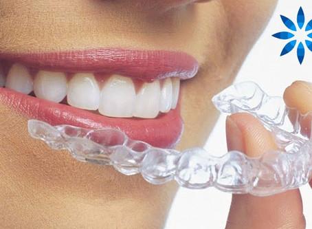 Invisalign - Discreet And Comfortable Teeth Straightening