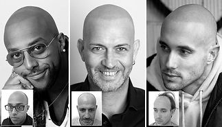 Scalp-Micropigmentation-Results_edited.j