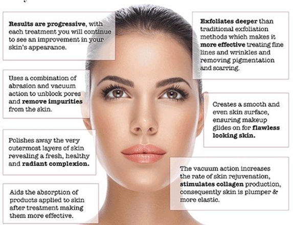 microdermabrasion benefits