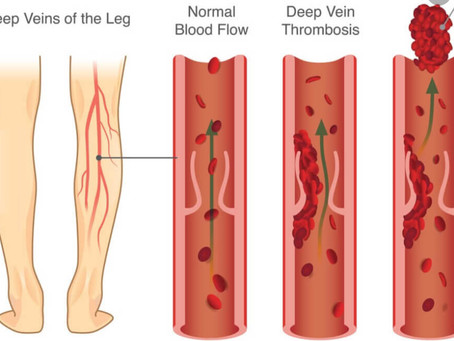 产后静脉血块风险 ( deep vein thrombosis)
