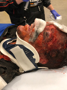 Chicago Med S4. Burned body with  3rd degree built up assisting Cirquefx