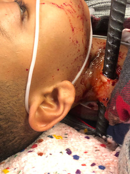 Chicago Med Silicone Fake neck Application and color Prosthetic by Cirque Fx