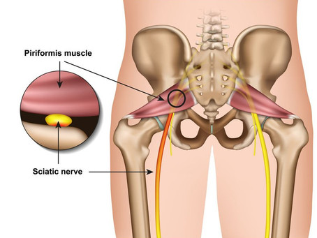 Piriformis Syndrome : Symptoms, causes and home exercises.