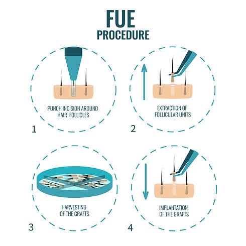 FUE Process Diagram.jpg