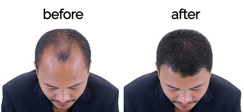 Before and After - 1.jpg