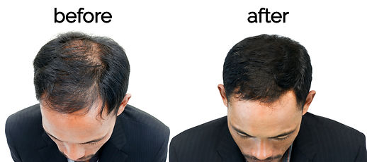 Before and After - 2.jpg