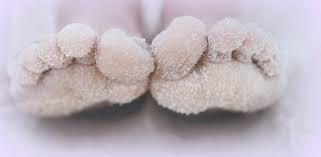 Mes pieds sont glacés !!!!!