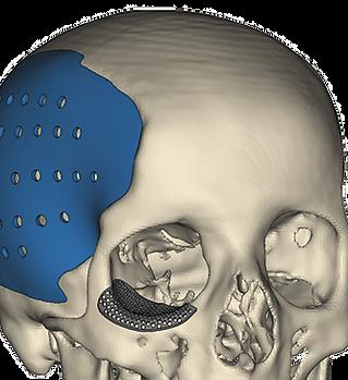 cranial-plate.png