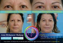 Eyebrow Transplant Alternative