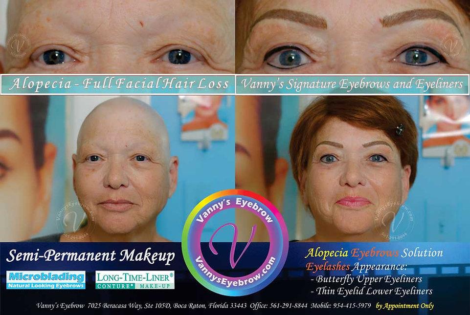 Eyebrow Restoration Alternative Result