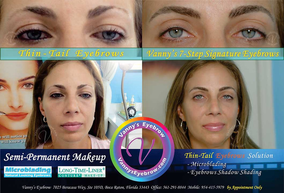 Eyebrow Tail Cosmetic Restoration