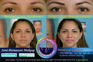 	Bald Spot Brow Correction Side-by-Side View