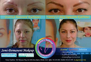 Scar Tattoo Brow Repaired Mobile View