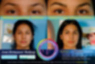Scarred Brows Correction Design Side-by-Side View