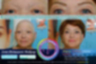 Eyebrow Restoration Alternative Result Mobile View