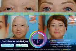 Eyebrow Permanent Makeup Loss Brows
