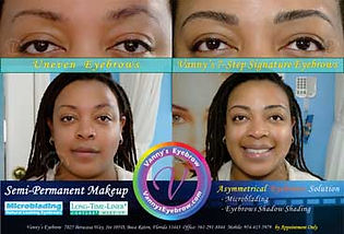 Uneven Brow Symmetrical Correction MobileView