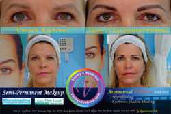 Severe Uneven Eyebrows Solution