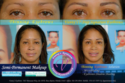 Advanced Thinning Eyebrows Solution
