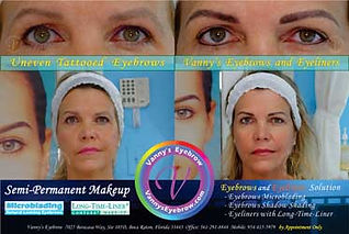 Saggy Brow Cosmetic Correction MobileView