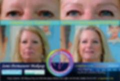 Alopecia brow microblading