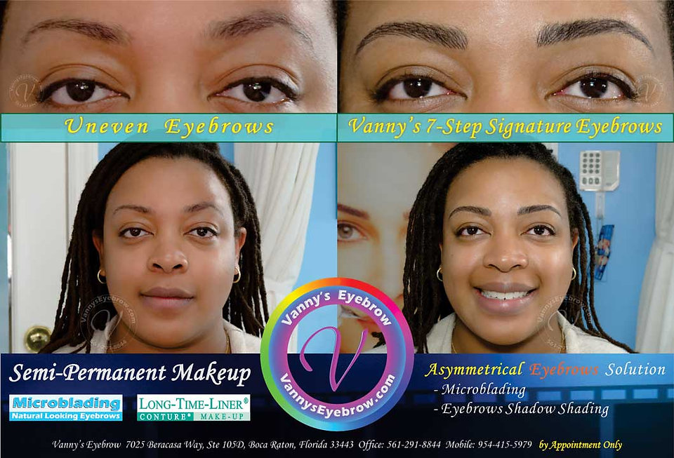 Uneven Brow Symmetrical Correction