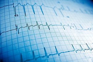 Close up of an electrocardiogram in pape