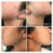 EpilFree Face  .JPG