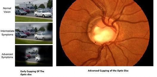 Glaucoma1-1-768x378.jpg